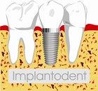implantodent medical